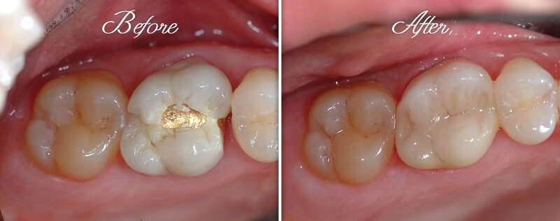 Crown Restoration Before and After