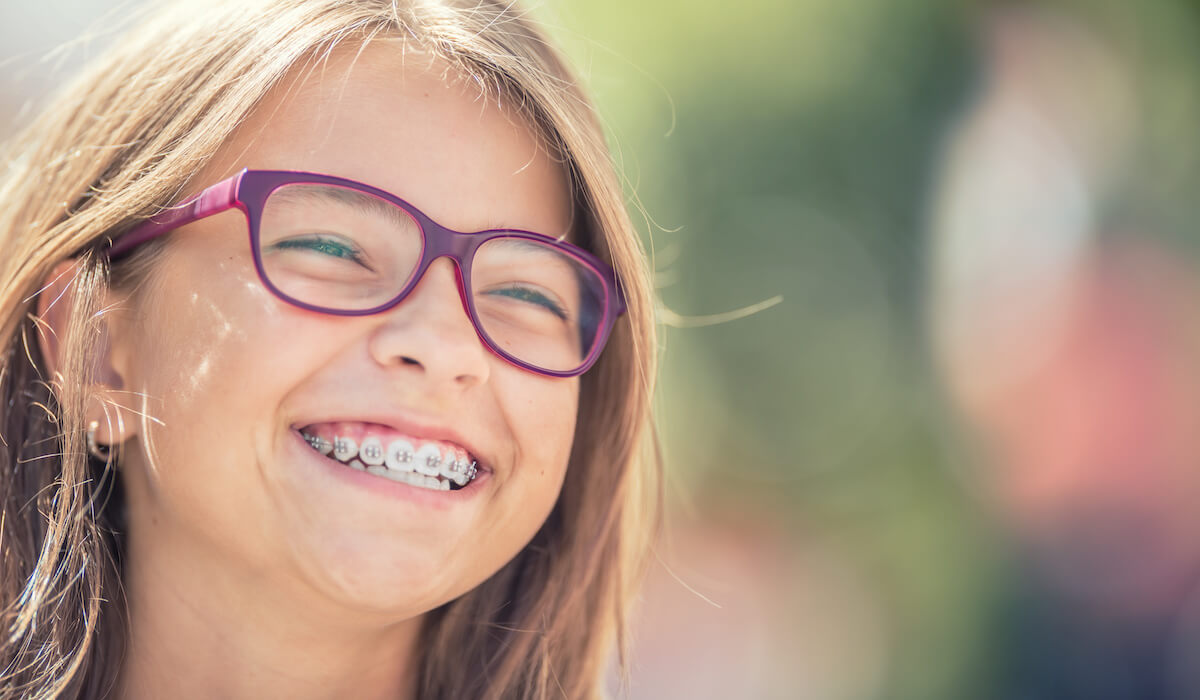 Dental Braces in San Diego
