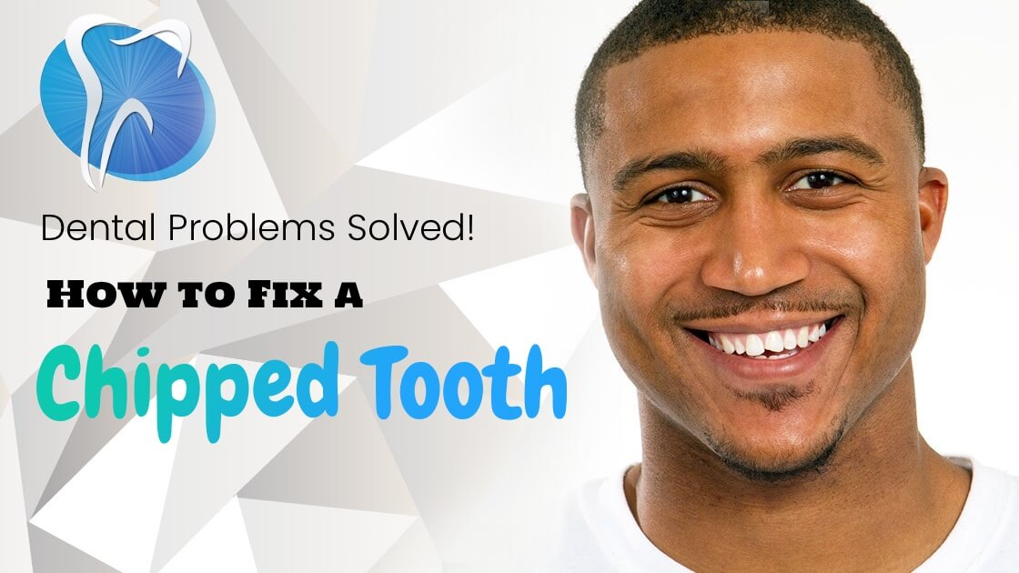 Have You Cracked a Smile Lately? 4 Ways to Fix a Chipped Tooth Fast